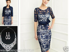Unique Lace Short Mother of the Bride Dress Prom Ball Evening Gown &Free Jacket