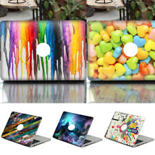 Dustproof Coloful Laptop Skin Pattern Decal for New MacBook Pro 13.3Notebook