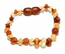 Genuine RAW Baltic Amber Anklet Bracelet for Baby Mixed Beads 5.5 - 5.9 in