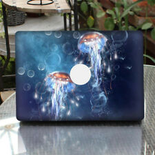 """Abstract Patterns Full Cover Skin Decal Sticker for New MacBook Pro 13.3"""""""