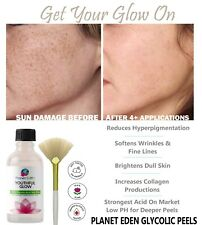 Dermatologist Grade Glycolic Acid Peel 30%, 40%, 50% or 60% strengths available