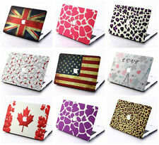 """Pattern Style Matt Frosted Opaque Hard Case Cover For MacBook Air Pro 11"""" 13""""15"""""""