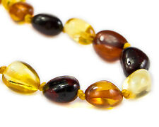 Baltic Amber Anklet/Bracelet by Nickolas Jewellery (Sheffield, UK), Any size