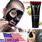 1-500pcs AFY BLACKHEAD MUD FACE MASK Acne Pore Strip Cleansing Wholesale