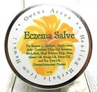 Herbal Salve for Eczema Skin Issues