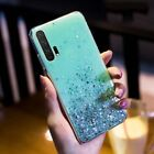 For Huawei Mate 30 20 Lite P20 P30 Pro Glitter Bling Clear Silicone Case Cover
