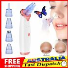 Face Facial Pore Blackhead Remover Vacuum Derma Suction Diamond Dermabrasion rY $12.91 AUD on eBay