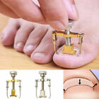 Ingrown Toe foot Nail Correction Fixer Nail Pedicure Tool Toenail Corrector USA