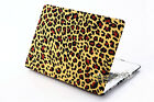 """Pattern Design/Rubberized Hard Case Cover For Macbook Air 11""""13""""/Pro 13""""15""""inch"""