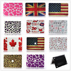 "Pattern Design/Rubberized Hard Case Cover For Macbook Air 11""13""/Pro 13""15""inch"