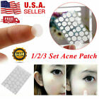 Skin Tag Acne Patch NEW Hydrocolloid Acne and Skin Tag Invisible Remover Patches $5.37 USD on eBay