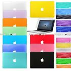 Keyboard Cover+Screen Protector+Hard Shell Case for Apple Macbook Mac Book Skin