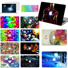 "New Painting Hard Case+keypad Cover+SP For Macbook Pro Air 11 13""15"" Retina 12"""