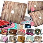 Wooden Paint 2PC Cut Top+Bottom Case+Keyboard Cover+Screen Protector for Macbook