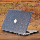 "Glitter Bling Shiny Diamond Matte Hard Case for MacBook Air Pro 13"" 13.3""+Retina"
