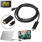 1.8M Thunderbolt Mini DisplayPort DP to HDMI Adapter Cable For Apple iMAC RF