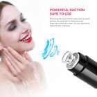 Soft Electric Face Pore Cleaner Vacuum Suction Blackhead Eliminator Acne Remover