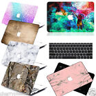 Customized Image Printed Hard Cases for MAC Laptop MacBook +FREE Keyboard Cover