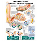 Anatomical Chart Company Understanding Carpal Tunnel Syndrome - 20'' x 26''