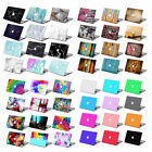 Rubberized/Painted Hard Laptop Case Keyboard Cover for Macbook Pro Air 11 13 15""