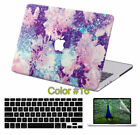 3in1 Rubberized Hard Painted Design Case Cover For Macbook Pro Air 11 12 13 15