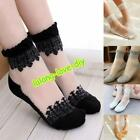 Gorgeous Lace Ruffle Ankle Socks Ultrathin Sheer Silk Cotton Elastic Socks - LD