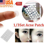 Skin Tag & Acne Patch- NEW Hydrocolloid Acne and Skin Tag Remover Patches