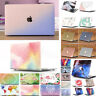 "Frosted Anti-Shock Matte Glitter Case For MacBook 12"" Air Pro 11"" 13"" 15"" 2016"