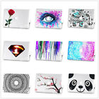 "Bling Sparkle Shiny Hard Case +Keyboard Cover For Macbook Air Pro 11""13""15"" inch"