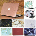 "Quicksand Marble Silk Gold Design Hard Case Cover For MacBook Pro Air 11""/13"""