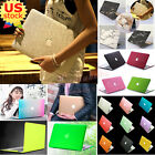 "Marble/ Silk/ Glossy Gold/ Rainbow Matte Hard Case Cover for Air Pro 11"" 13""inch"