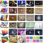 "2in1 Colorful Universe Marble Paint Hard Case for Retina 12"" Air Pro 11"" 13"" 15"""