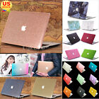 "Luxury Glitter Bling/ Silk Leather/ Marble Matte Case for MacBook Air 13"" 13.3"""