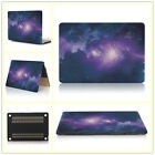 """PU Leather Coated/ Galaxy Rainbow Hard Case for MacBook 12"""" Air Pro 11"""" 13""""15"""""""