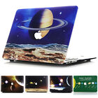 "Universe Galaxy Print Matte Hard Case  for MacBook AIR PRO 11"" 13"" 15"" Touch Bar"