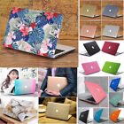 "Silk Glitter Shiny/ Marble Matte Hard Case for MacBook AIR 13""/13.3"" A1369 A1466"