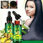 30ml 7 Days Hair Growth Essential Ginger Oil Anti Baldness Alopecia Hair Care US $11.01 USD on eBay