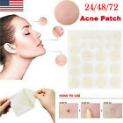 72PCS Skin Tag Acne Patch NEW Hydrocolloid Acne and Skin Tag Remover Patches USA $6.98 USD on eBay