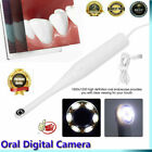 Oral Intraoral Camera WIFI Endoscope Teeth Mirror LED Light Portable Endoscope