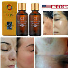 Skin Whitening Lightening Brightening Serum Oil Dark Spot Bleaching Cream 30ml $7.59 USD on eBay