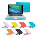 "Ultra Slim Crystal Cover Case For Apple Macbook Pro / Retina 13"" & 15"""