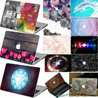 "Laptop MATT Print Hard Marble Pattern Case Cover for Macbook Air Pro 11""12""13""15"