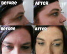 30 Treatments £3.90 removes eyebags anti-ageing wrinkle instant facelift cream £6.5 GBP on eBay