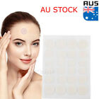 Acne Remover Pimple Patch Stickers Tag Removal Facial Spot Face Skin Care OZ $9.95 AUD on eBay