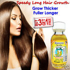 Ginseng Long Hair Fast Growth Tonic Thicker Faster Regrowth Anti Loss Fall Split