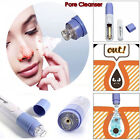 Electric Facial Pore Suction Spot Cleaner Blackhead Removal Acne Pimple Cleaner