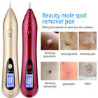 Electric LCD Portable Laser Freckle Warts Dot Mole Dark Spot Tattoo Removal Pen@