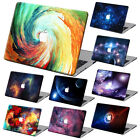 "Galaxy Painting Hard Case Cover +KB +SP For Macbook Pro Air 11""13""15"" Retina 12"""