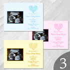 Personalised Baby Shower Invitations / Invites with Envelopes