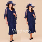 Dark Blue Lace Mother Of The Bride Dresses Applique Pageant Prom Evening Gowns